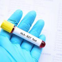 Antigeno HLA B27 1