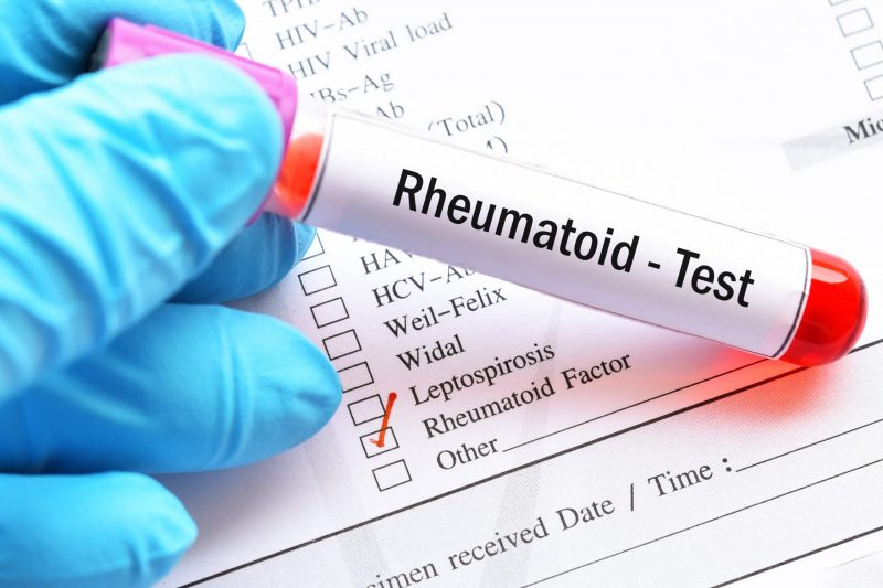 Amostra de sangue para teste de fator reumatóide (RF)