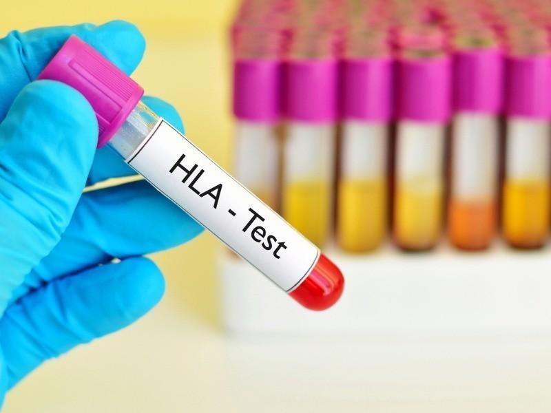 Histocompatibilidade 1