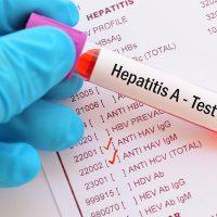 Imunologia Anti HAV
