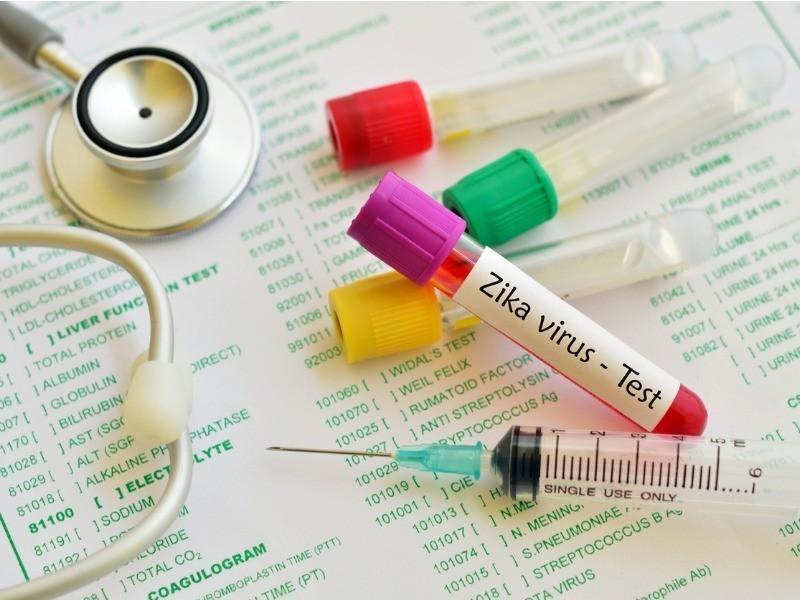 Imunologia Zika Virus zika virus test picture id594014090