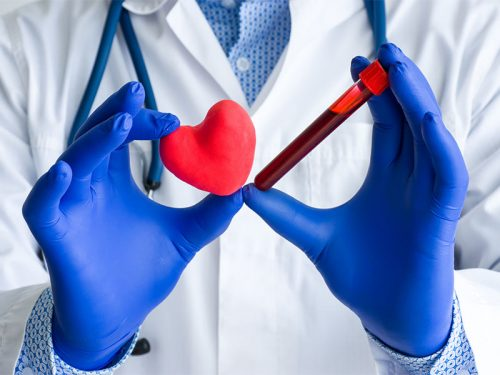 Marcadores Cardiacos