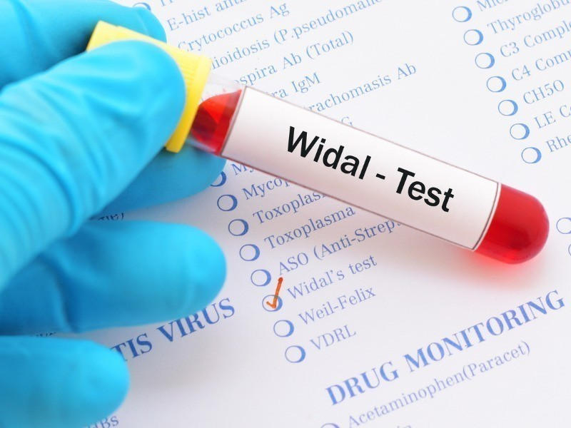 Reacao de Widal widal test picture id868169384