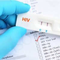 TLR Anti HIV positive test result picture id1096026944