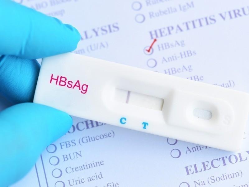 TLR HBsAg hepatitis b virus negative test result picture id1002989740