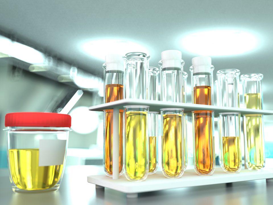 provas laboratoriais em clínica de microbiologia moderna - teste de qualidade da urina para cristais ou infecção, ilustração médica em 3D