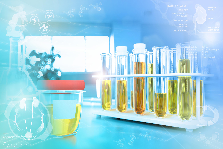 Teste de amostra de urina para nitrito ou bactéria - tubos de ensaio no escritório de pesquisa de química moderna, ilustração médica 3D