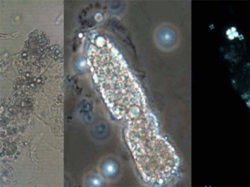 Urinalise Elementos Anormais e Sedimentoscopia