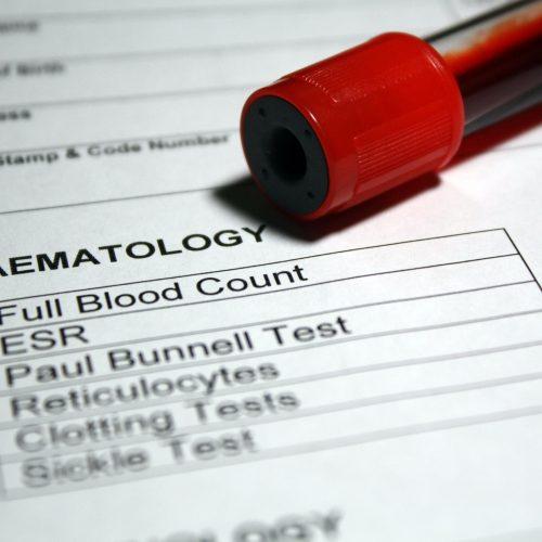 Teste de hematologia de sangue